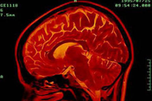 4929232_7_0731_le-diagnostic-et-le-pronostic-des-comas-et-des_3daf5b58b4283efc5c2ecdce25de587b