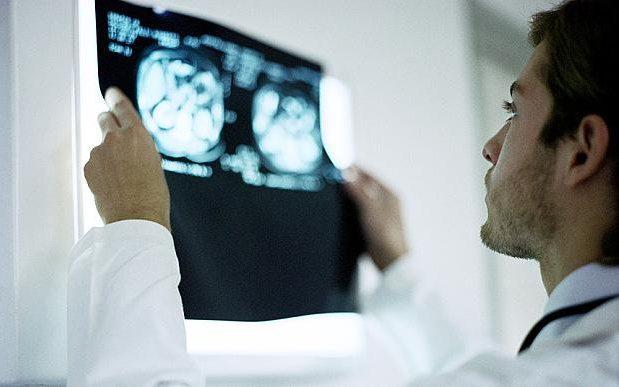 MRI_scan_3064670b-large_trans++pJliwavx4coWFCaEkEsb3kvxIt-lGGWCWqwLa_RXJU8